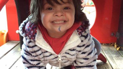 Blutkrebs und Down-Syndrom bei Kindern