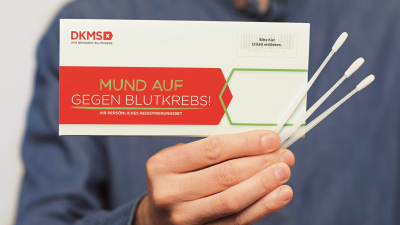 Innovation des DKMS-Labors: CMV-Status per Wangenabstrich